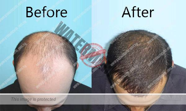 Common Foods That Regrow Hair and Solve Baldness Naturally